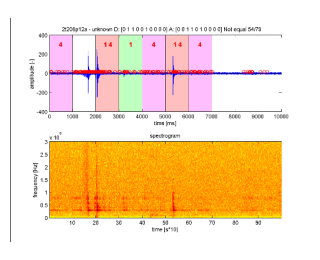 Artifact detection in the microEEG